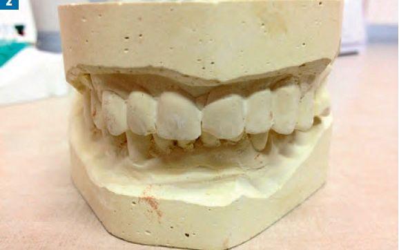 Fot. 2. Modele gipsowe przed leczeniem