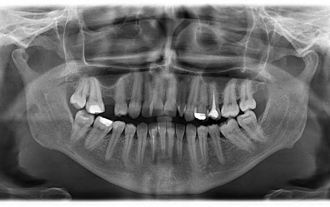 Zdjęcie panoramiczne, mesiodens umiejscowiony podniebiennie powyżej wierzchołka korzenia zęba 11