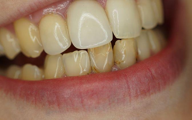 Stan wyjściowy – próchnica wtórna w obrębie zębów: 31, 32, 41, 42