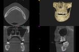 Zastosowanie tomografii stożkowej w implantologii stomatologicznej
