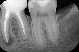 Podejmowanie decyzji, planowanie  i postępowanie w przypadku niepowodzenia leczenia endodontycznego