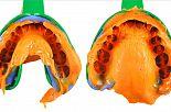 Wycisk podłoża protetycznego podstawą dobrego wykonania uzupełnienia protetycznego