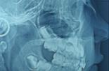 Nowoczesne aparaty ortodontyczne szansą na korektę estetyki twarzy