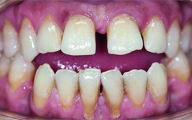 Fot. 2 Zbliżenie zębów przed leczeniem