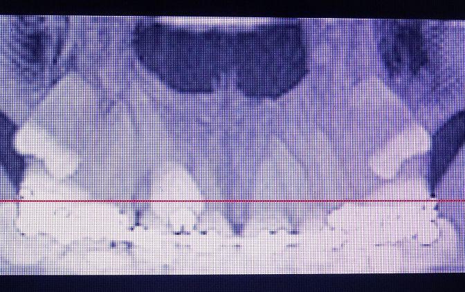 Fot. 7 CBCT 2- Zdjęcie przedstawia CBCT, przekrój czołowy szczęki