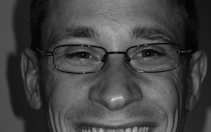 Fot. 1 Zgłaszane przez pacjenta przebarwienia oraz nieodpowiednia pozycja zębów siecznych górnych znacznie pogarszała wygląd estetyczny