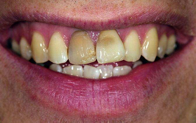 Fot. 2 Poważne przebarwienia zęba 11 spowodowało również zmianę koloru otaczającego dziąsła brzeżnego