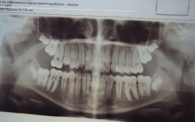 Fot. 2 Na zdjęciu pantomograficznym widoczny ząb 14