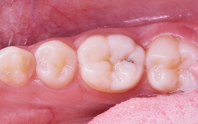 Fot. 2 Przedzabiegowy widok kliniczny: przebarwienie w bruździe zęba 36 (próchnica powierzchni zgryzowej)