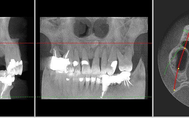 Fot. 1.  Tomografia komputerowa szczęki