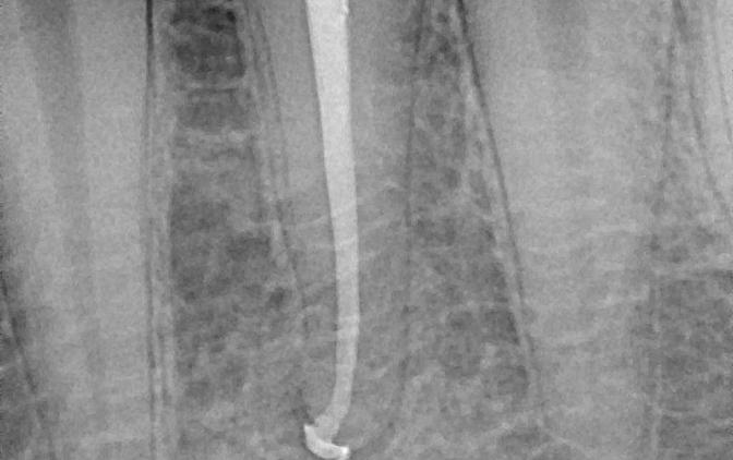 Fot.1(A.B) A.  Ząb 34  po nieprawidłowym leczeniu endodontycznym, z widoczną zmianą okołowierzchołkową. B. Ząb 34 po wykonaniu retreatmentu