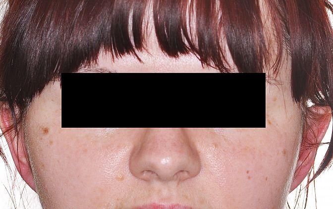 Fot.1 Zdjęcie matki en face