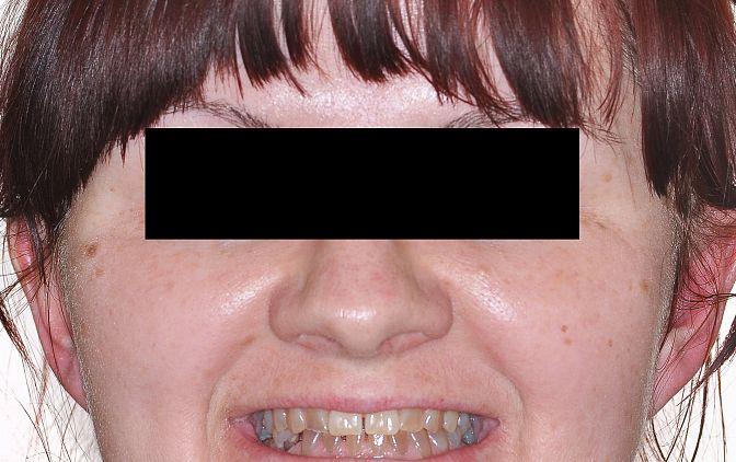 Fot.2 Zdjęcie matki en face