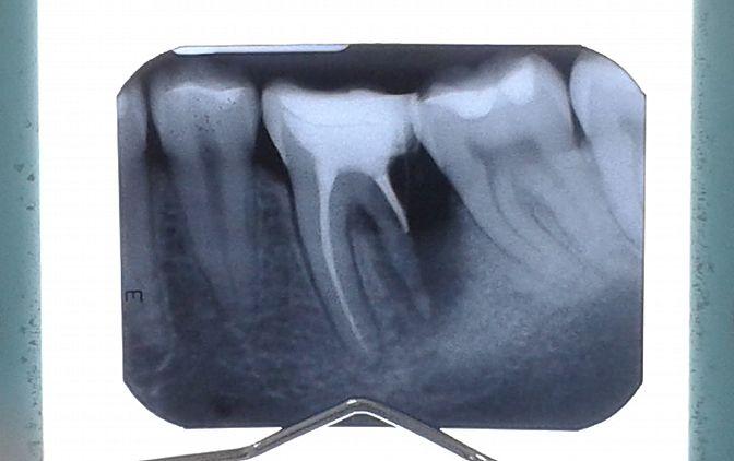 ryc. 1 Kanały mezjalne zęba
