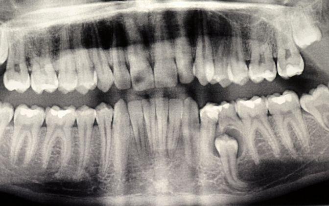 Ryc. 1. Obraz radiologiczny przetrwałego zęba mlecznego 75, torbieli zawiązkowej  oraz zatrzymanego zęba 35