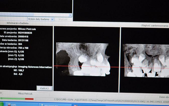 Fot. 2. Wycinek badania radiologicznego ilustrujący przedni odcinek szczęki
