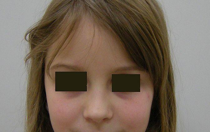 Twarz pacjenta (widok z przodu) oraz profil pacjenta na początku leczenia ortodontycznego