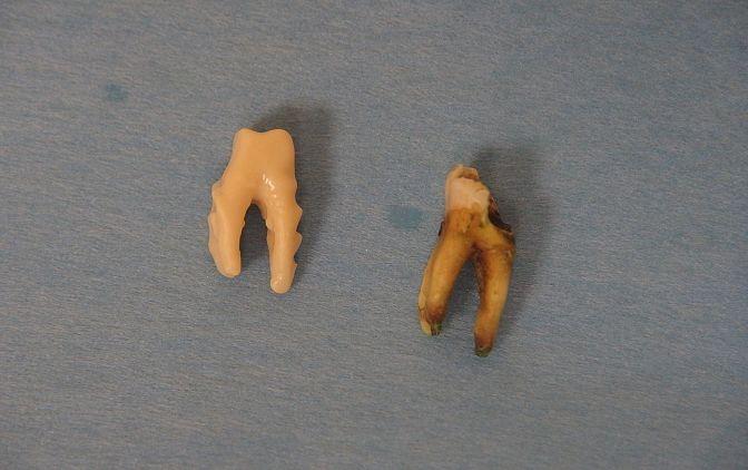 Fot. 1. Uzyskany ząb po ekstrakcji oraz wykonany BioZir