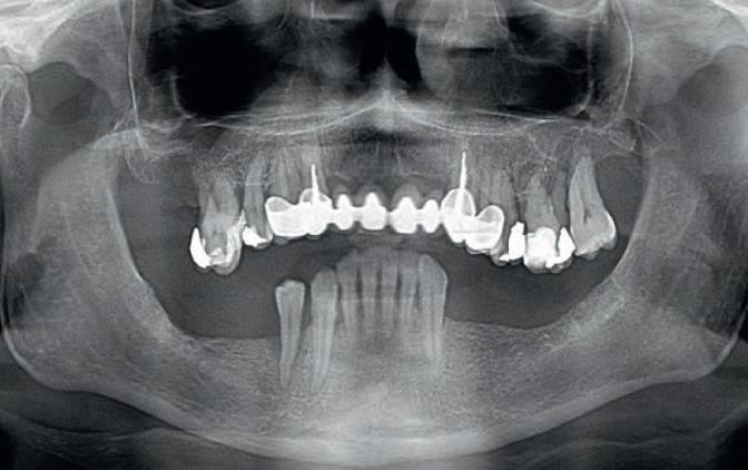 Fot. 1. Zdjęcie pantomograficzne przed leczeniem