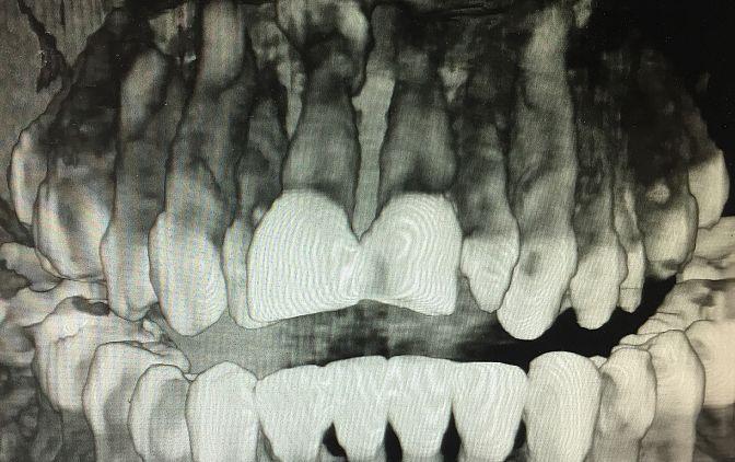 Tomografia komputerowa, mesiodens umiejscowiony podniebiennie powyżej wierzchołka korzenia zęba 11