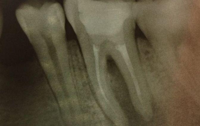 Ząb 36 – leczony endodontycznie ok. 2 lat wcześniej