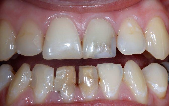 Stan przed wykonaniem licówek na zęby 11 i 21. Widoczne wypełnienia kompozytowe o niezadowalającym efekcie estetycznym