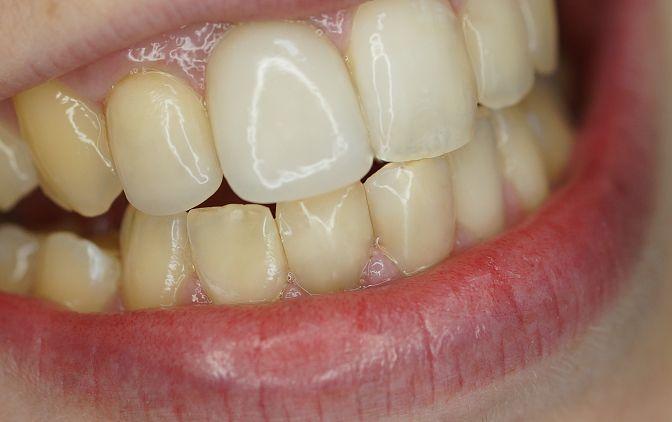Odbudowa koron zębów: 31, 32, 41 i 42 materiałem kompozytowym