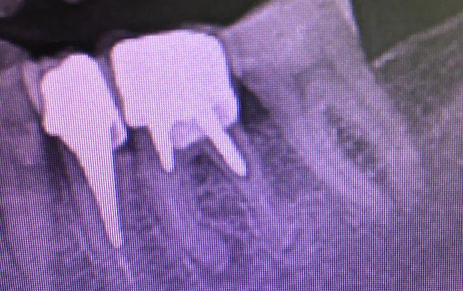 Zęby zaopatrzone wkładami koronowo-korzeniowymi ze zmianami okołowierzchołkowymi. Leczenie będzie wymagało usunięcia wkładów i wykonania powtórnego leczenia endodontycznego