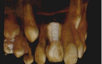 Przypadek 1. Rekonstrukcja pseudotrójwymiarowa w badaniu tomografii stożkowej CBCT. Widoczny ząb 11 po odległym urazie