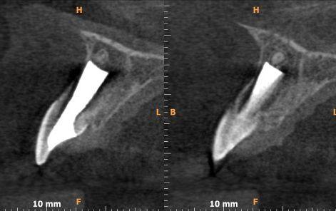 Przypadek 1. Badanie tomografii stożkowej CBCT, przekroje strzałkowe. Tkanki korzenia zęba 11 są w większości zresorbowane – widoczne są jedynie cienkie ściany w dokomorowym