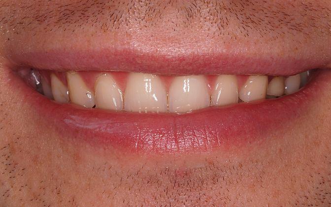 Fot. 1. Lekki uśmiech – stan przed leczeniem