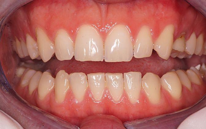 Fot. 2. Zęby lekko rozwarte – stan przed leczeniem