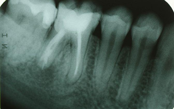 Fot. 1. Zdjęcie radiologiczne - sytuacja wyjściowa