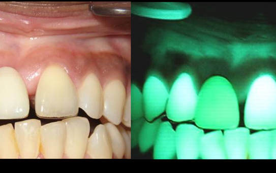 Fot. 2a-b. Zwiększona pigmentacja dziąseł – występuje u osób z ciemną karnacją, ale może pojawić się również u osób palących papierosy
